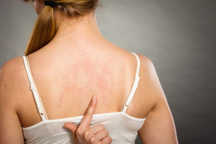 woman in a white tank top pointing at the red marks/rashes at her back from laying down on a wet beach towel.